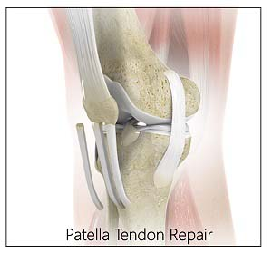 Patellar Tendon Repair